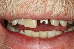 What is a dental abutment?
