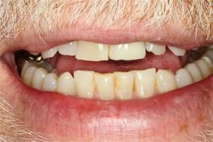 Tooth Implant Pasadena Texas