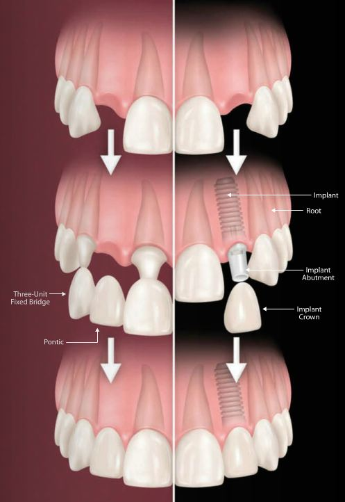 Dental Implants are better than bridges.