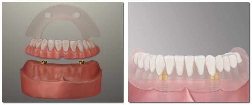 Dental Implant Dentures