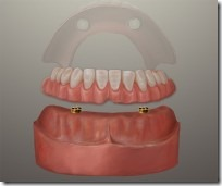 Dental Implant Denture Houston Texas