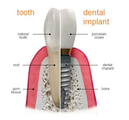 Natural Teeth Vs Dental Implants Dental Implant Dentist
