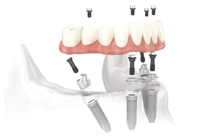 Pasadena, Texas All on Four Dental Implants