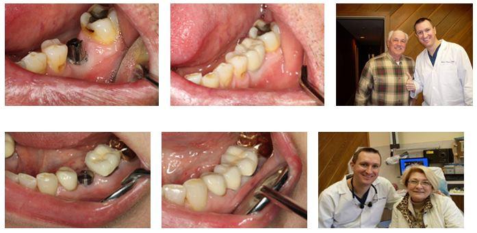 Teeth Implant Deer Park Texas