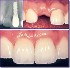 League City Texas Dental Implants
