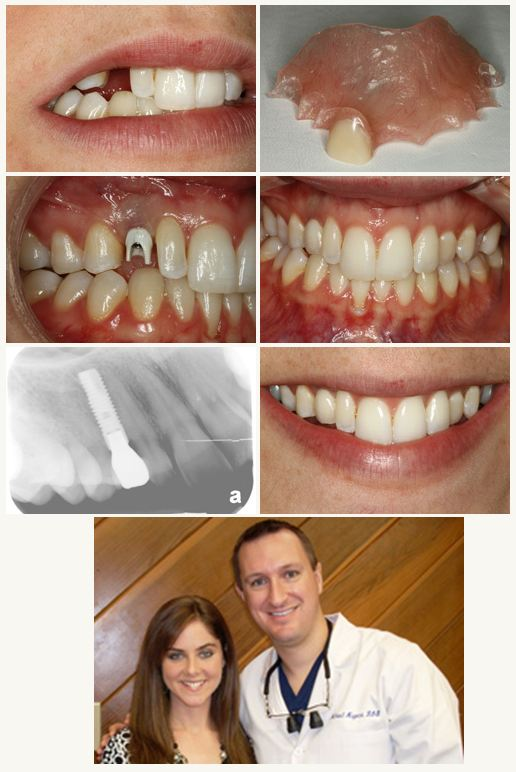 Replace missing teeth with dental implants.
