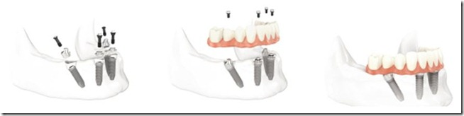 All on Four Dental Implants in Pasadena Texas