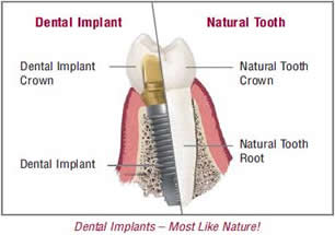 Dental Implants closely mimic natural teeth. Thus, they are the best way to replace missing teeth.