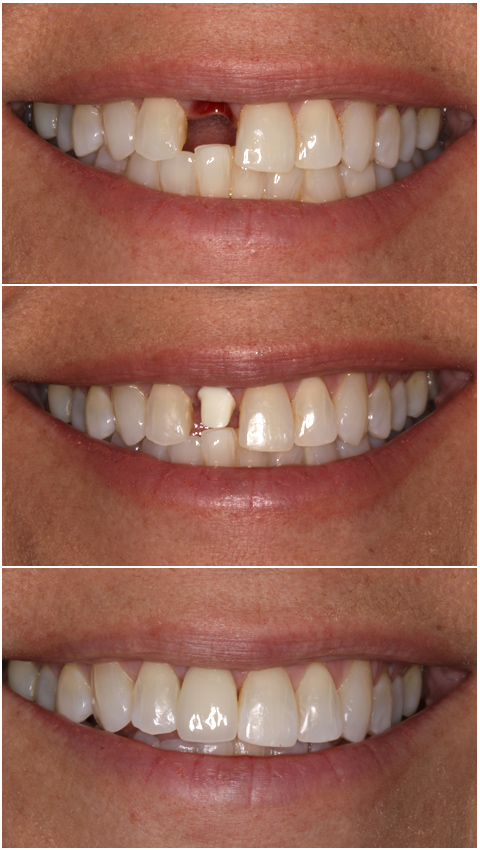 Tooth Implant Deer Park Texas