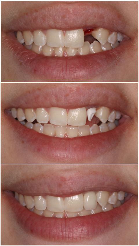 Best Cosmetic Dental Implant Dentist
