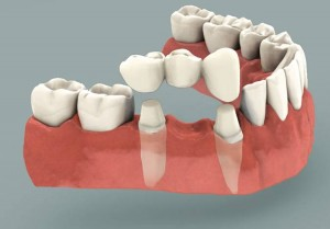 Dental Bridge Pasadena Texas
