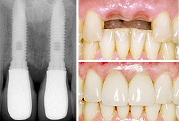 Dental Implants Dr. Nugent