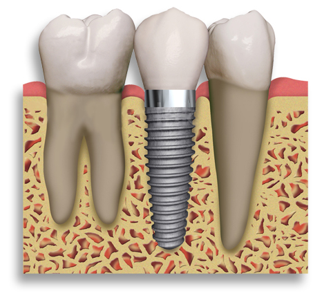 La Porte TX dental implants