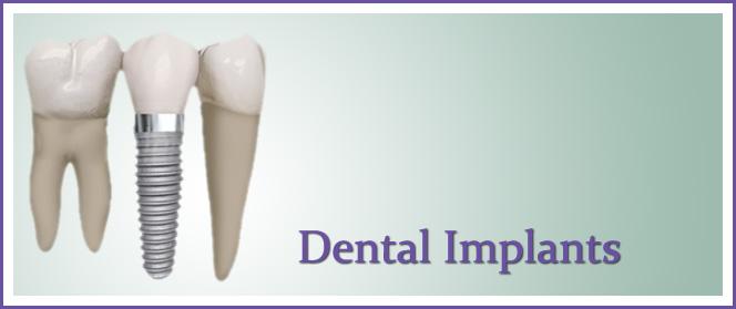 Dental Implant Dentist League City