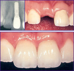 Dental Implant Pasdaena Texas