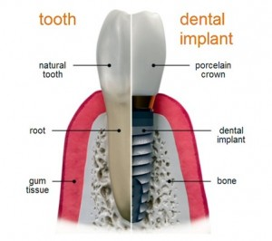 Dental Implant Pasadena, Deer Park Texas