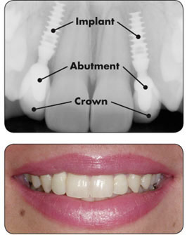 Pasadena Texas Dental Tooth Implants