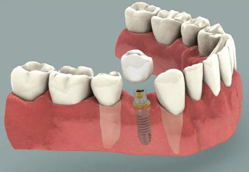 Dental Implant Deer Park Texas