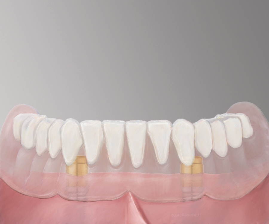 Pearland Denture Implants