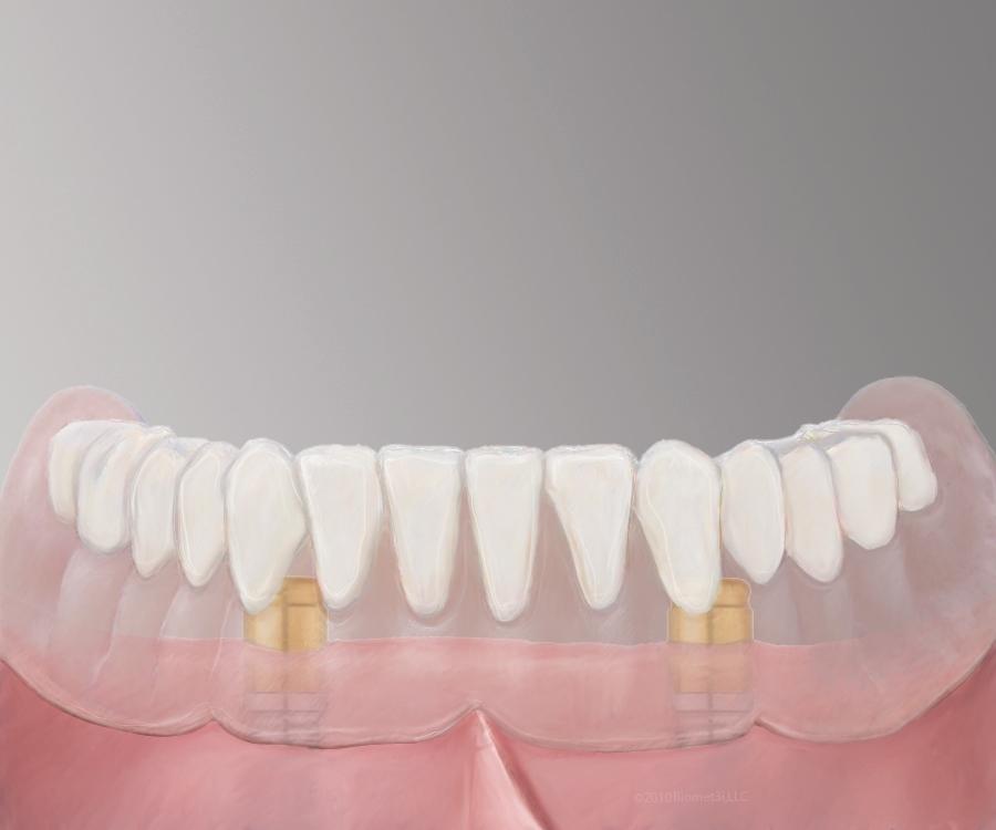 Pearland Denture Implants