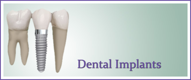 Cosmetic Dental Implant Dentist Pasadena