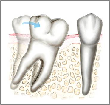 Dental Implant Friendswood Texas