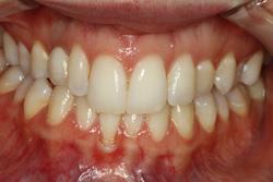 Dental Implants La Porte Texas