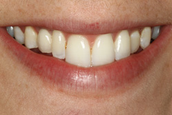 Dental Implants Deer Park