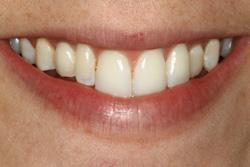 Clear Lake Texas dental implant