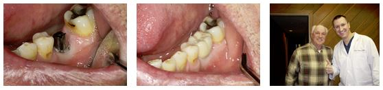 Dental Implants can be used to replace back teeth.