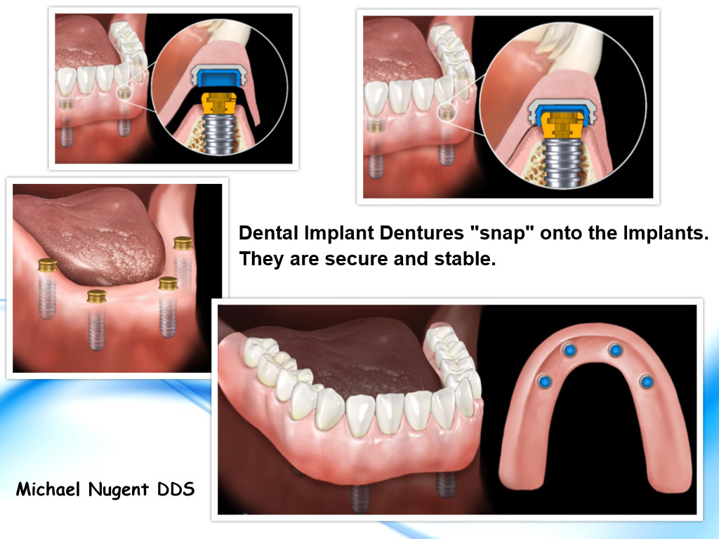 Dentures on Dental Implants