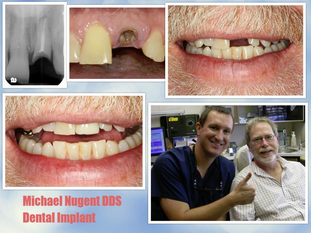 Dental Implants in Pasadena Texas