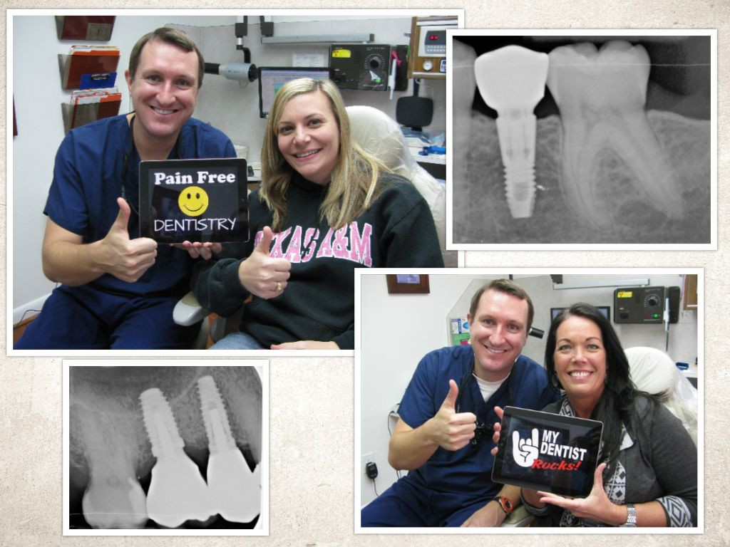 Missing Tooth replaced with a Dental Implant