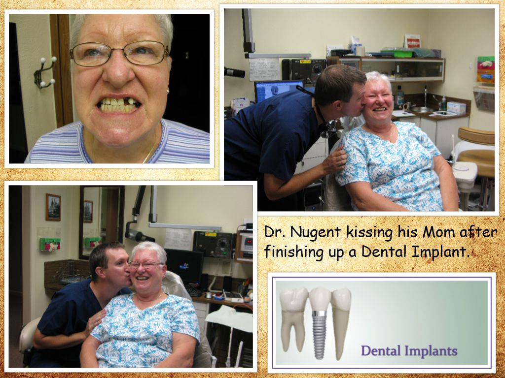 Dental Implants for the Family
