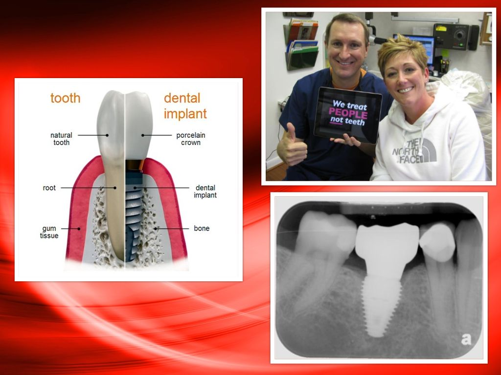 La Porte TX Dental Implant Dentist