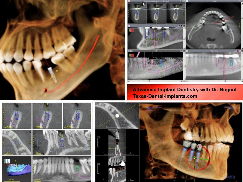 Advanced Dental Implants and Cone Beam