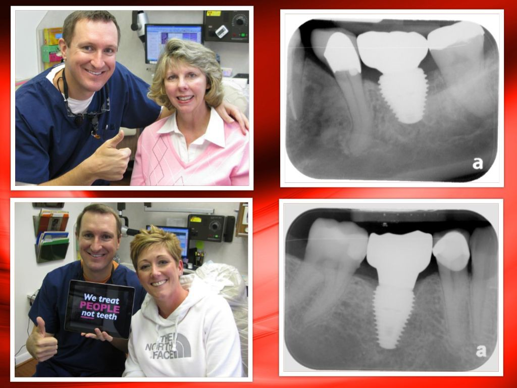 Pasadena Texas Dental Implants by Michael Nugent DDS
