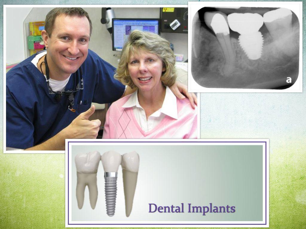 Deer Park Texas Dental Implant Dentist