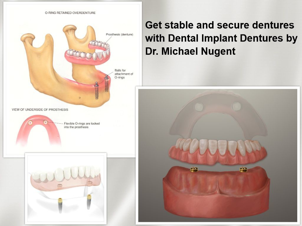 Dentures with Dental Implants