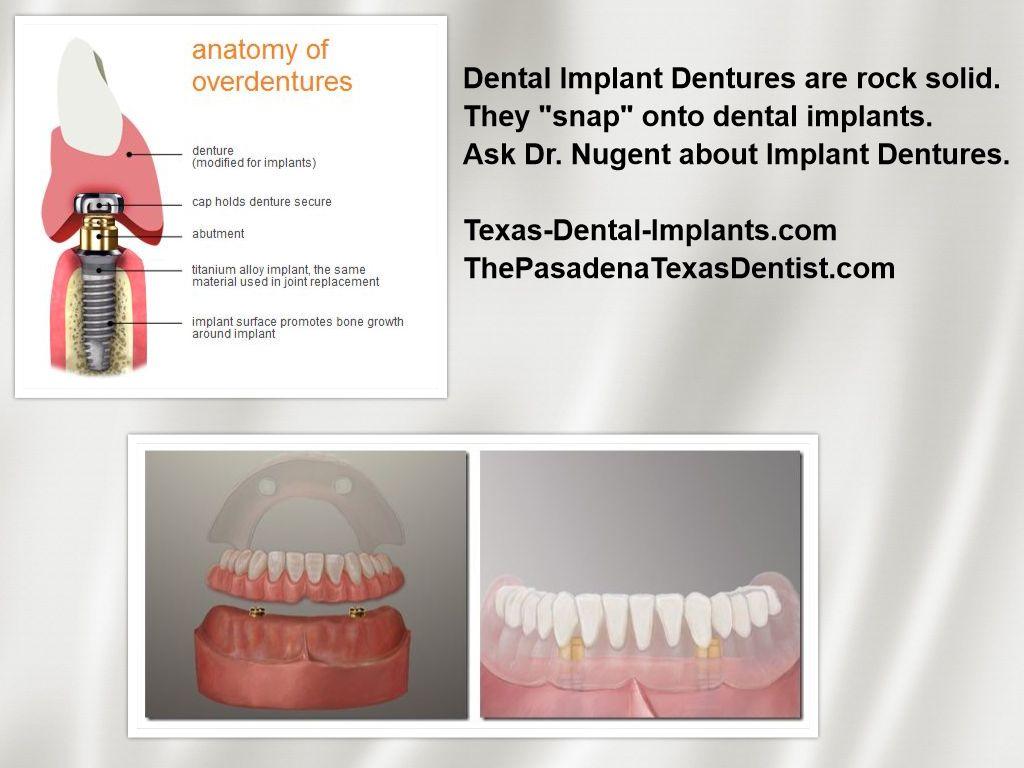 Dental Implant Denture