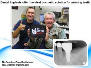 Detnal Implants Pasadena