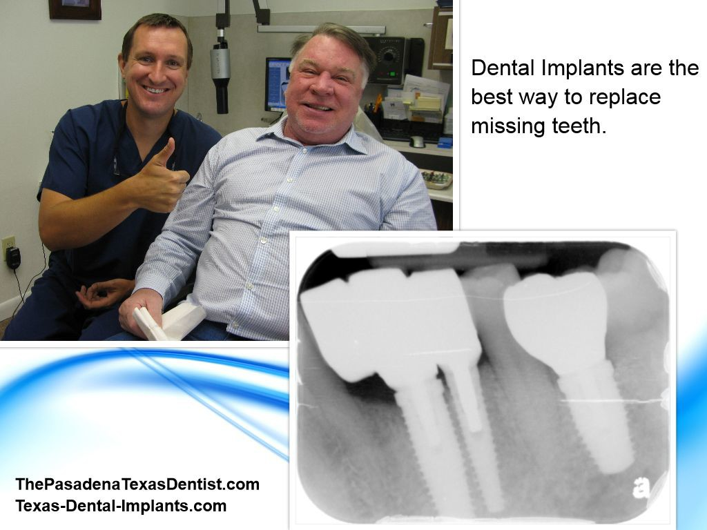 Teeth Implants Pasadena Texas