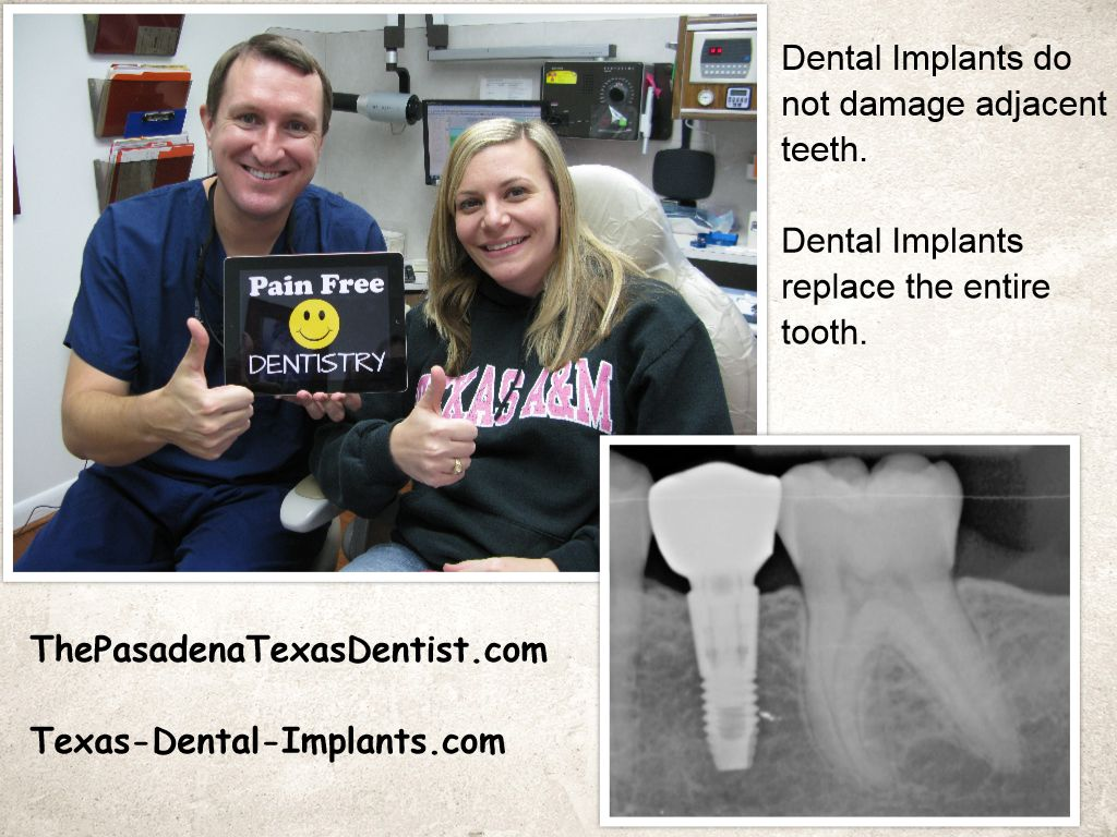 League City Texas Dental Implant Dentist