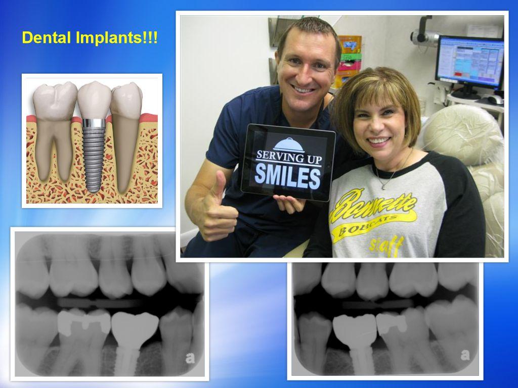 Denral Implant Dentist Pasadena Texas