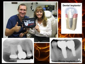 Pasadena, Texas Dental Implants