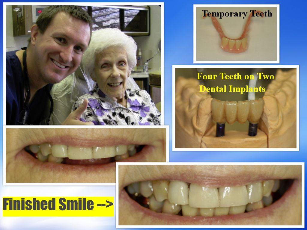 Dental Implant Bridge Pasadena, Texas