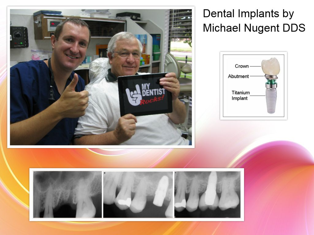 Deer Park Dental Implants