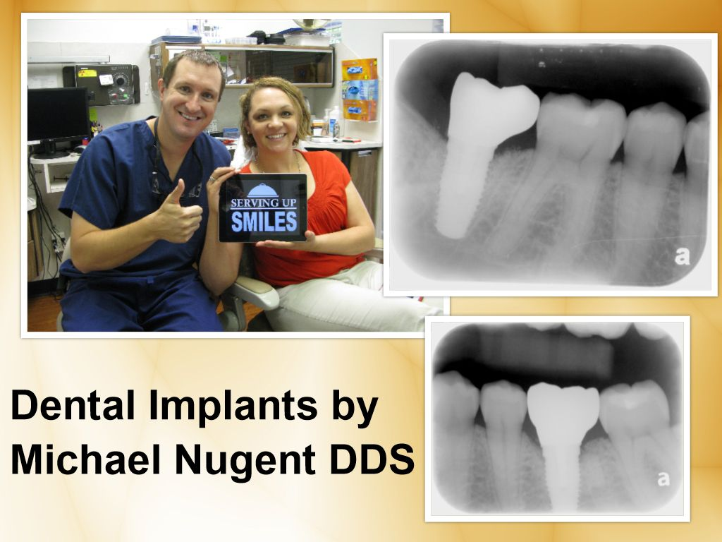 Get the best in dental implant care!