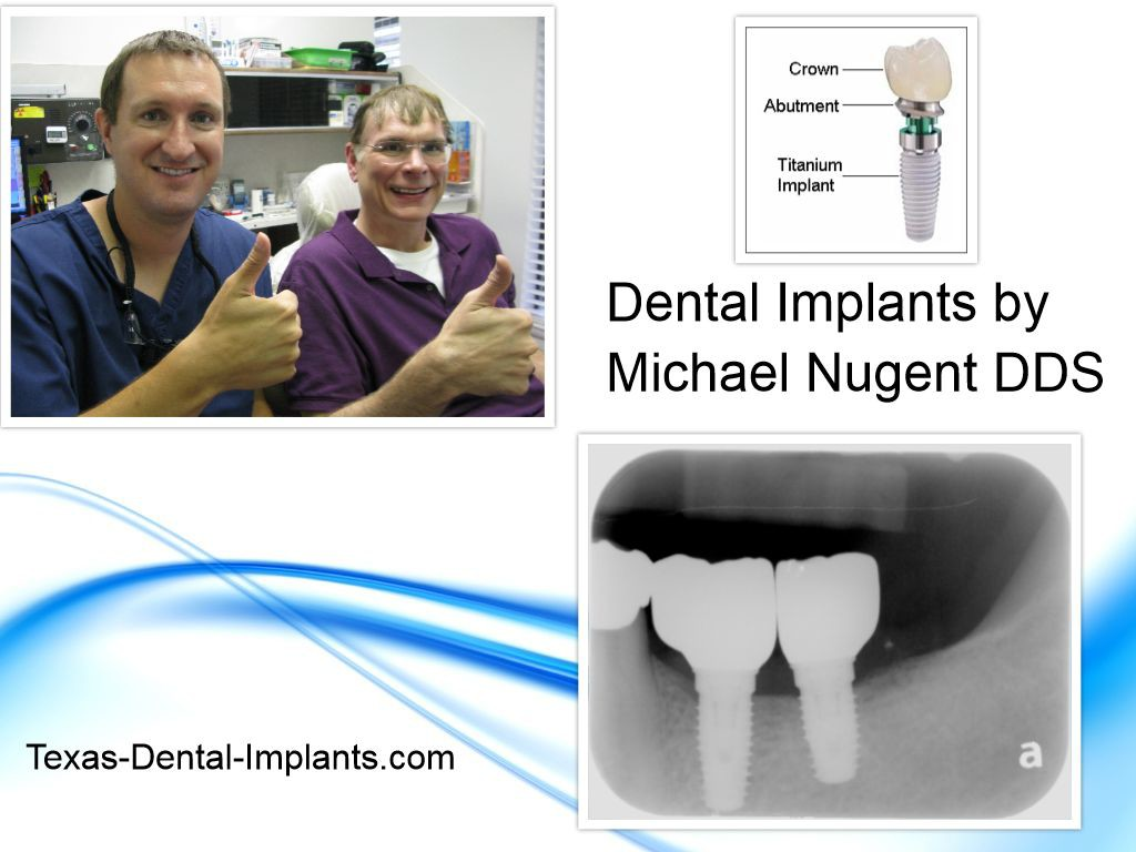 Dental implants replace missing teeth.