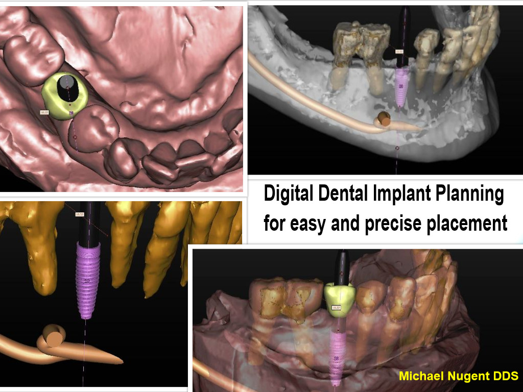 Digital Implant Surgery with Pasadena Texas Dentist Dr. Michael Nugent
